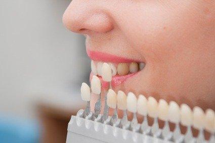 Farvekort til tandkrone